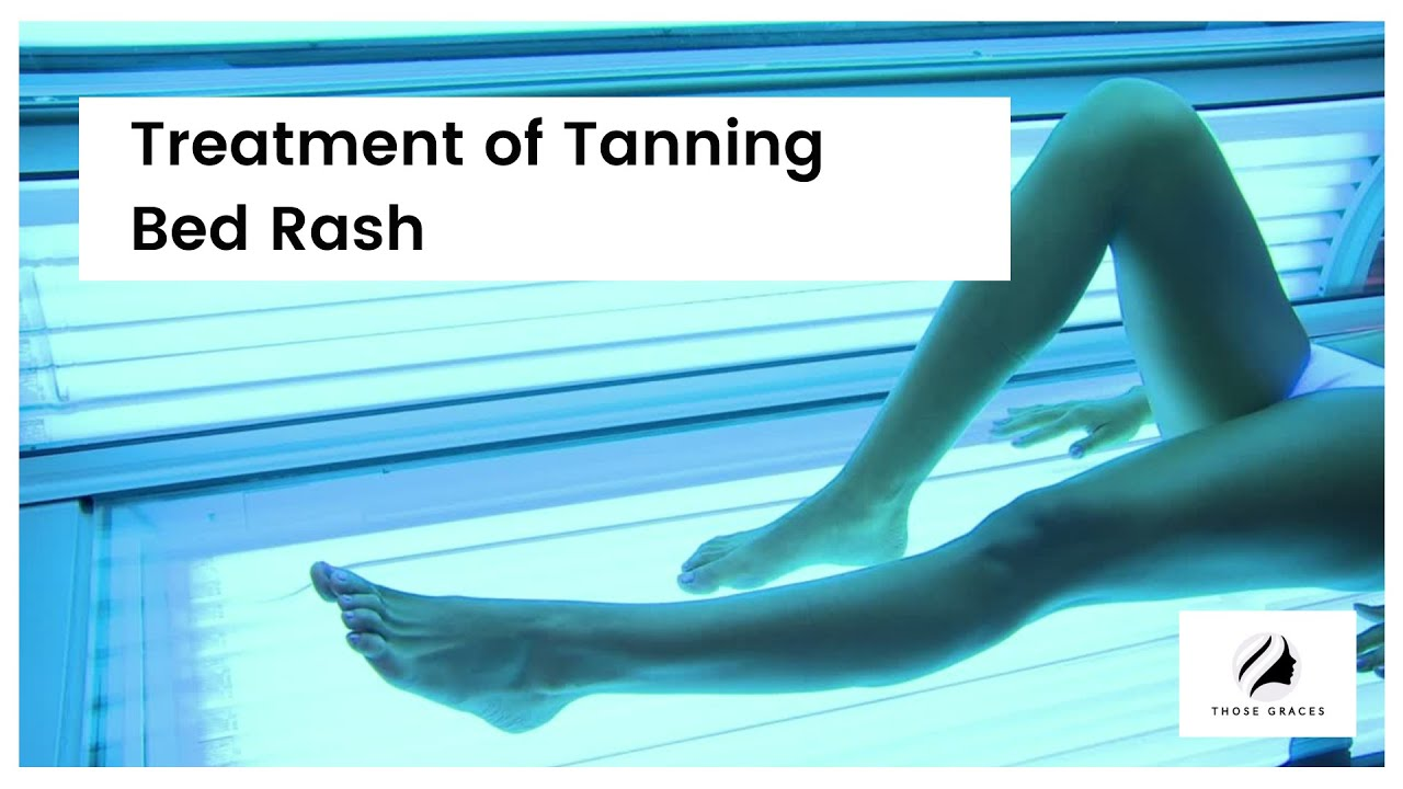What does tanning bed rash look like