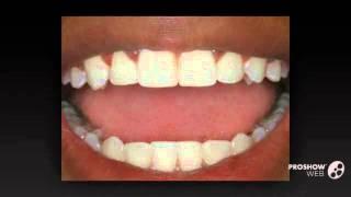 отбеливание зубов калуга   - Домашнее отбеливание(, 2014-09-29T05:50:06.000Z)