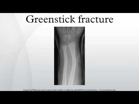 greenstick fracture - youtube, Human Body