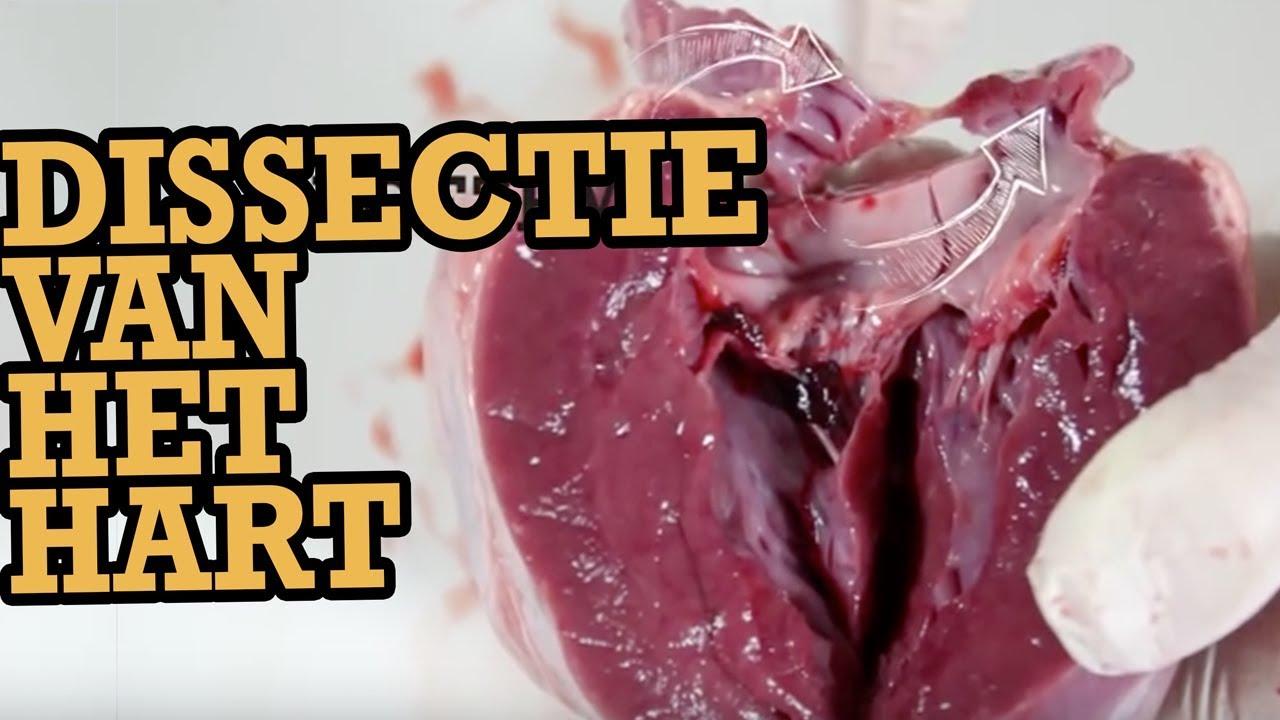 Valentijnsspecial dissectie van het hart door wezooz for Door het hart van china