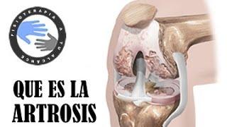 Que Es La Artrosis Y Como Se Produce