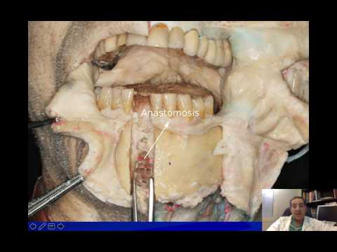 Dr Emad Salloum Managing risks and complications in anterior mandibular implant therapy