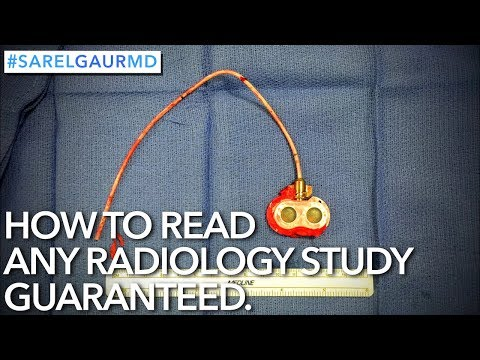 How to Read Any Radiology Study GUARANTEED