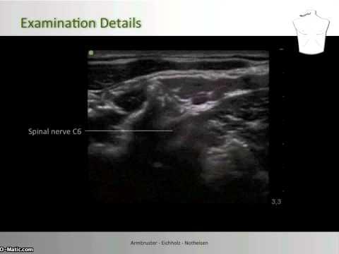 Cervical Plexus Block - Nerve Localization, Examination C7 to C3