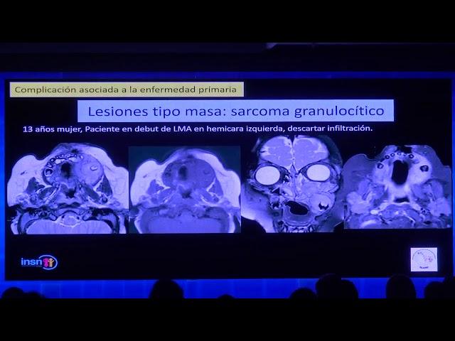 Leucemia: complicaciones en el SNC. Claudia Lazarte