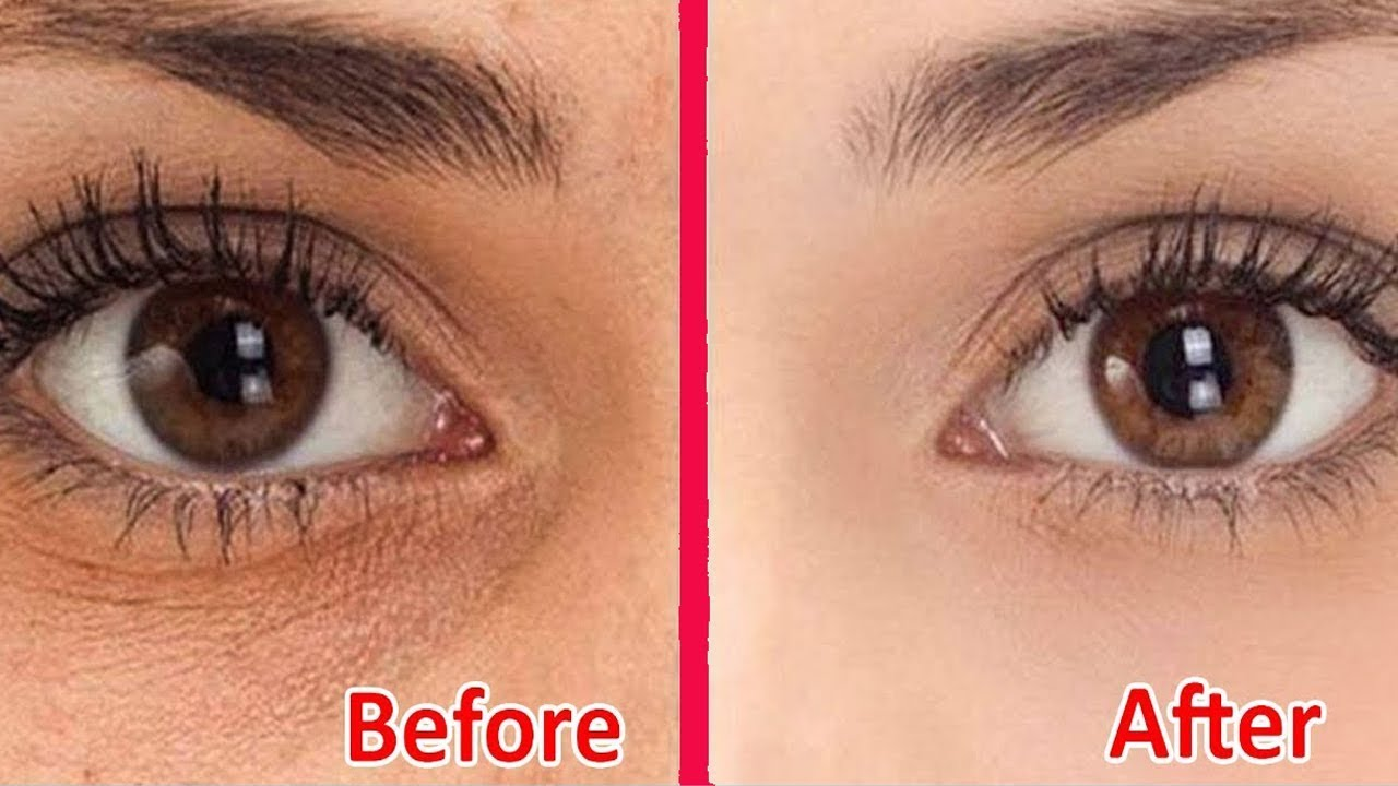 How To Remove Dark Circles Under Eyes At Home In 2 Days In ...