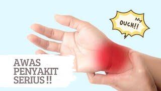 Sering Kesemutan? Waspada Gejala Penyakit Serius! | lifestyleOne.