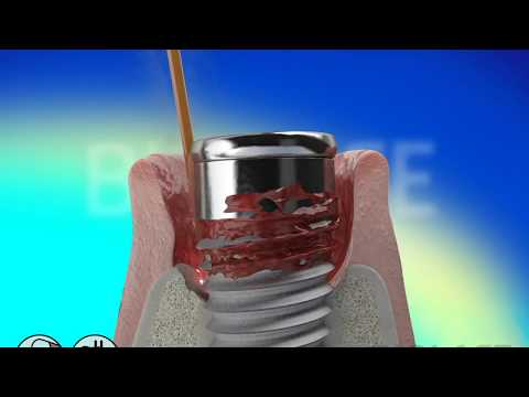 Dental Implants Plantation FL