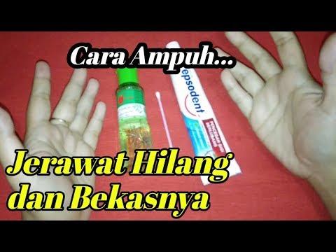obat-jerawat-paling-ampuh-!!-cara-menghilangkan-jerawat-dan-bekas-jerawat-|-khasiat-alam
