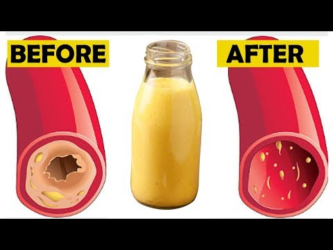only-a-glass-of-this-juice-will-remove-clogged-arteries-and-control-blood-pressure-naturally