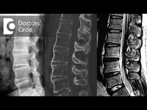 What Do Sclerotic Lesion On Spine Mean? - Dr. Kodlady Surendra Shetty