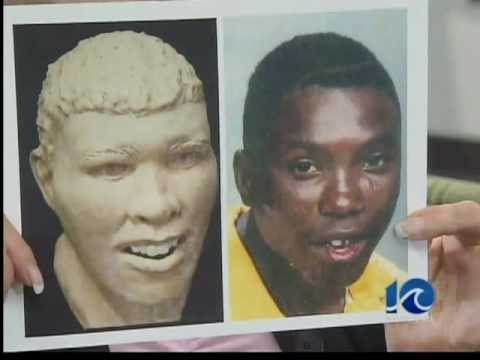 Share your Facial reconstruction cases