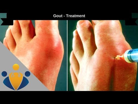 Gout treatment: How to Cure Gout in 24 hours Naturally 🎁 🎁 🎁
