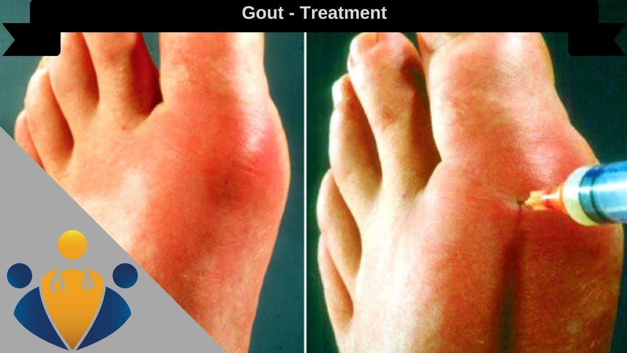 How To Get Rid Of Joint Pain Naturally
