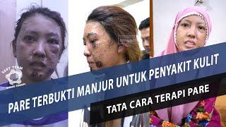 Terkena penyakit Steven Johnson seorang ibu rumah tangga di kota Sukabumi, Jawa Barat, alami luka me.