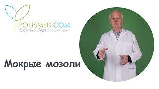 видео Мозоль между пальцами ног: виды, лечение, профилактика
