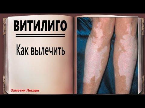 Белые пятна на коже   Витилиго  лечение народными средствами