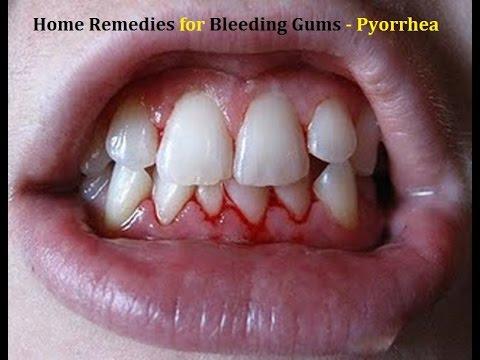 Bleeding Gums Home Remedies Pyorrhea Gingivitis Youtube