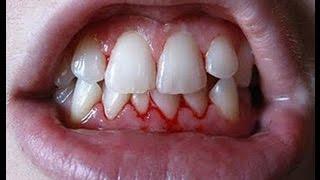 Bleeding Gums Home Remedies - Pyorrhea - Gingivitis