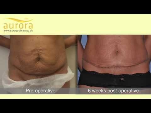 Mini Tummy Tuck Patient Testimonial - Aurora Clinics