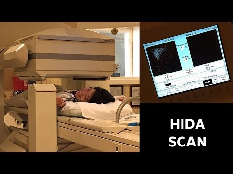 MY HIDA SCAN EXPERIENCE