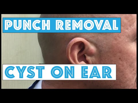 Cyst at the base of the Ear, Dedicated to Justin, Scott, & Spiegel On 98Rock Morning Show