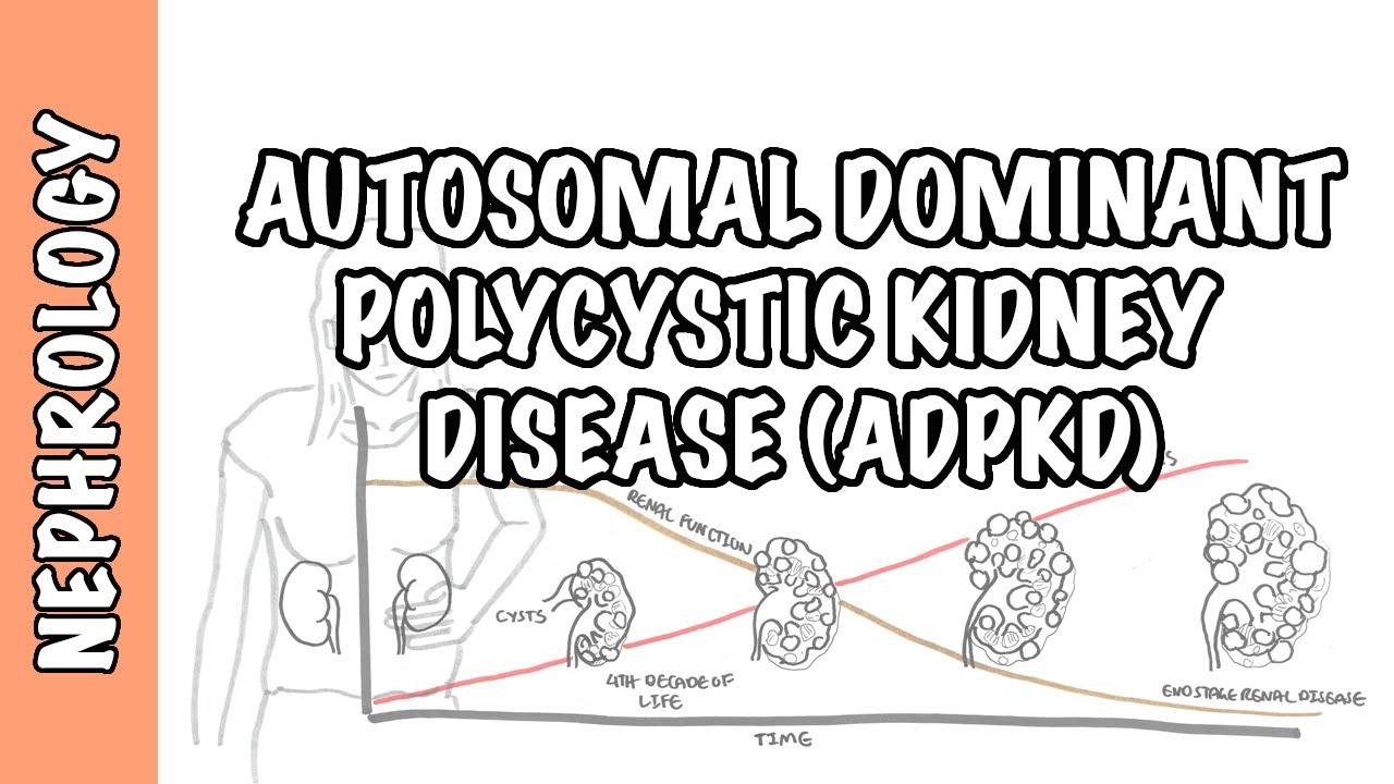 Autosomal Dominant Polycystic Kidney Disease Adpkd Causes Pathophysiology Diagnosis Treatment Youtube