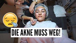 DIE AKNE MUSS WEG! + Verlosung!  | 24.11.2017 | AnKat