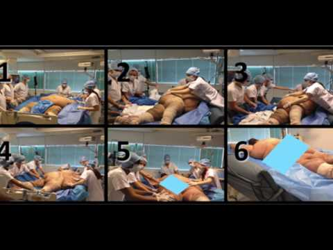 Prone Positioning & ARDS - 4