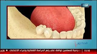 الدكتور |  طرق تجميل الاسنان المناسبه لكل حاله مع د شادي علي