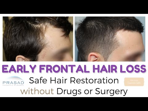 Frontal Hair Loss at 20 - Managing Hair Loss and Hair Thinning Safely without Surgery