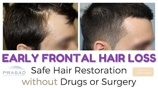 Frontal Hair Loss at 20 - Stopping Hair Loss and Hair Thinning Safely without Drugs or Surgery