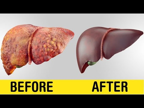 How To Clean Naturally Your Liver in 7 Days