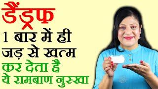 Dandruff, रूसी, बाल झड़ने से रोकने का अचूक घरेलु नुस्खा Dandruff Remedy & Hair Care Tips in Hindi