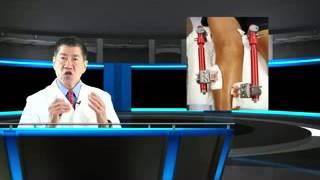 Knee osteoarthritis | distraction for knee oa