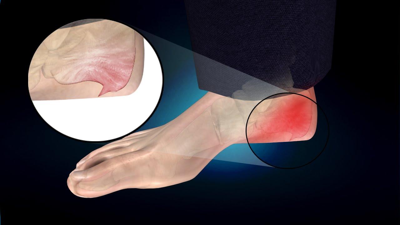 Semne de osteochondroza ?i tratamentul acesteia