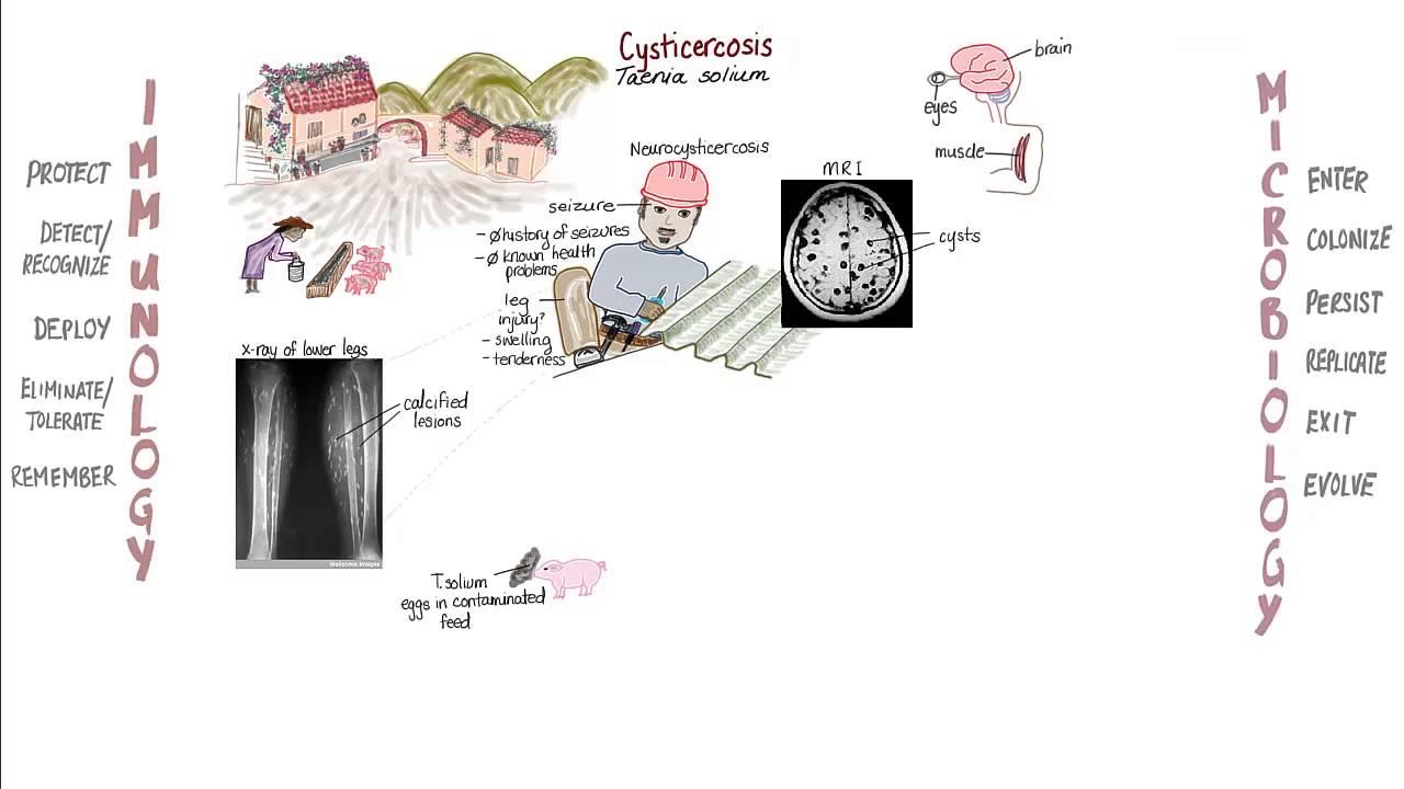 gyermekkori helminthiasis megelőzése)