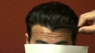 FUE Hair Transplant Surgery Result Lower Hairline Bald Asian Man Dr. Diep www.mhtaclinic.com