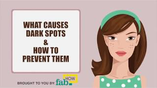 What Causes Dark Spots & Blemishes on Face and How to Prevent