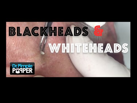Extracting blackheads and whiteheads around the eyes and cheeks