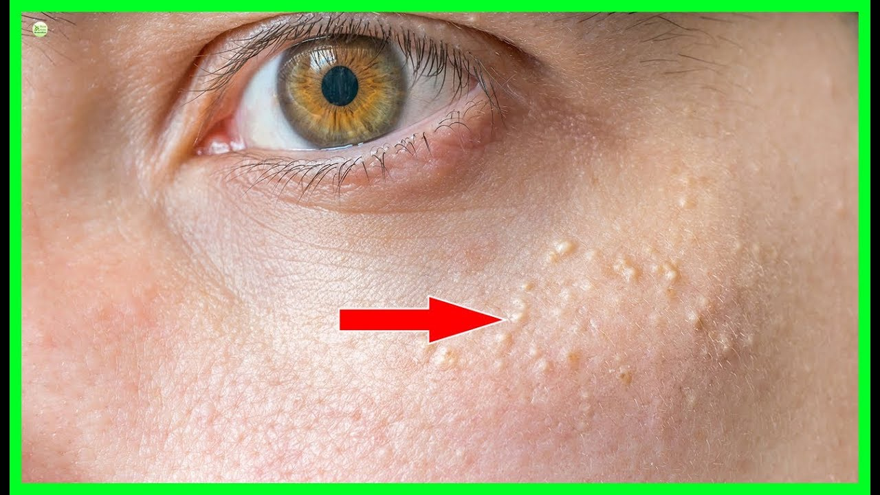 Get Rid Of Milia Under Eyes At Home