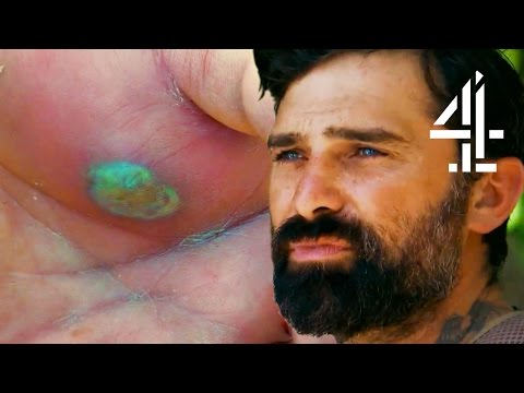 A Really Bad Hand Infection Leads To An Emotional Farewell | Mutiny
