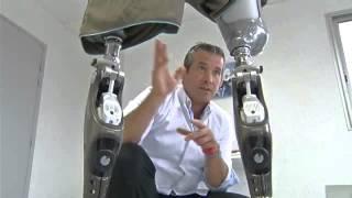Repeat youtube video Genoux GENIUM patient amputé double fémoral
