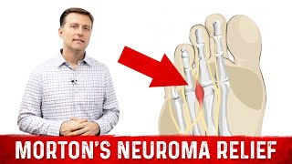 A Counter-Intuitive Way to Treat Morton's Neuroma Pain