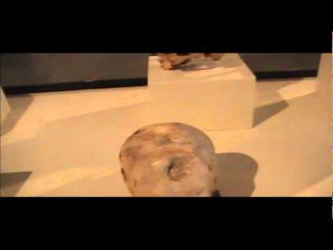 Ancient Brain Surgery: Trepanation in Peru