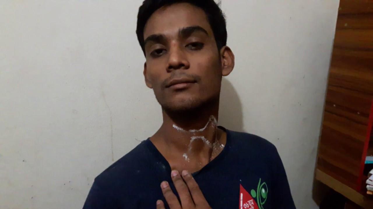 Surface marking-Thyroid gland - YouTube