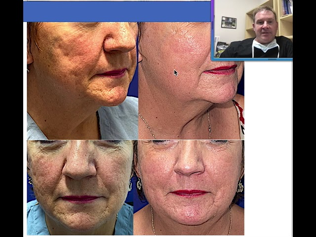 Morpheus + Radiofrequency Microneedling with Dr. John Burroughs, Springs Aesthetics,Colorado Springs