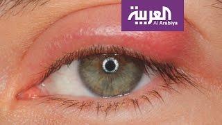 صباح العربية: مشاركة الماسكارا وقلم الكحل خطر على صحة العين