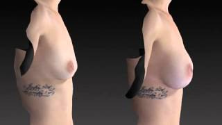 Breast Enhancement 3D Before and After-55