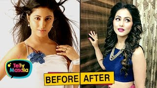 Top TV Actresses Before And After PLASTIC Surgery | Mouni Roy, Hina Khan and Others